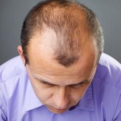 saç ekim öncesi